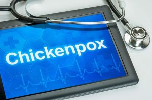 Homecare Atoka TN - Can Chickenpox be Dangerous for an Elderly Adult?